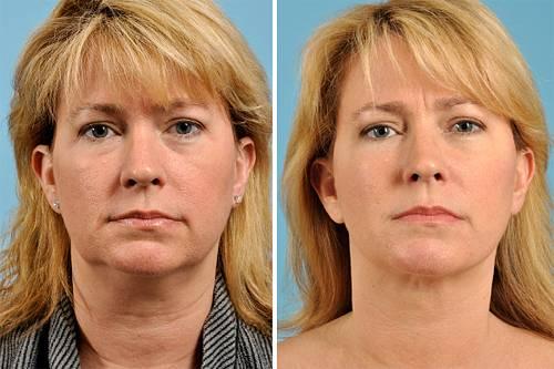 lifting-facial-antes-e-depois