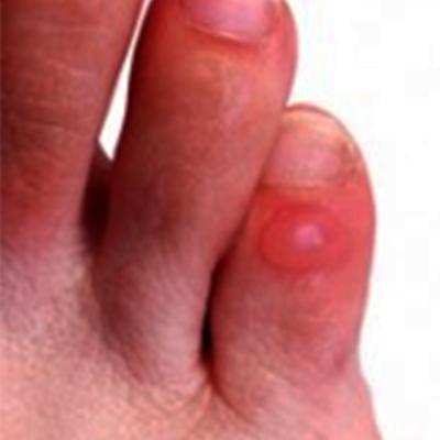 bolhas-nos-pés