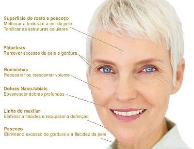 Benefícios do lifting facial