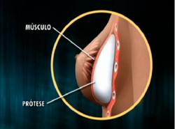 Prótese é colocada atrás do músculo