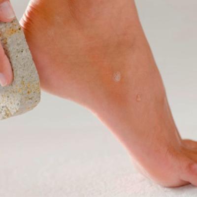 esfoliação-dos-pés